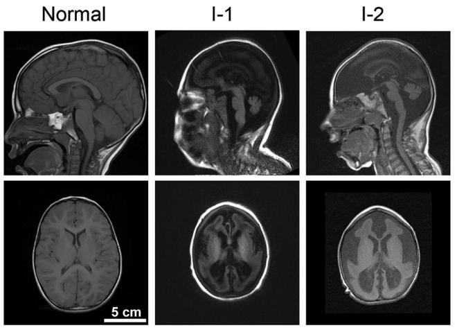 Brain size_human